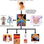 Ilustrasi (Google/ medicastore.com)