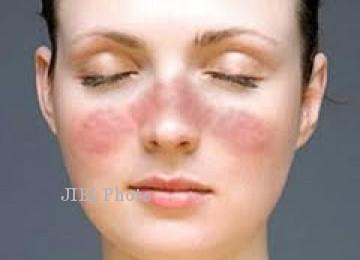 Ilustrasi penyakit lupus