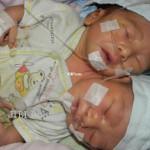 BAYI BERKEPALA DUA : Fakta Baru tentang Kondisi Bayi Berkepala Dua