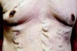 Varises yang timbul di perut seorang pria Jepang (dailymail.co.uk)