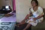 Penderita chikungunya, Karni, 47, warga Desa Kerdukepik, Giripurwo, Wonogiri menunjukkan bengkak di kedua kakinya. Ia terserang cikungunya hingga dua kali, Minggu (1/12/2013). (Fajar T/JIBI/Solopos)