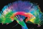 Ilustrasi syaraf otak manusia (news.com.au)