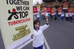 Masyarakat Diimbau Waspadai Penyebaran Bakteri TB