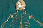 Kerangka bayi berusia 36 tahun di perut wanita India (emirates247.com)