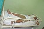 Kondisi narapidana rumah tahanan (Rutan) Wonogiri bernama Damun, 50 di kamar no 15 Bangsal Dahlia, RSUD dr. Soediran Mangun Sumarso (SMS), Kamis (30/10/2014). Damun adalah narapidana kasus perjudian yang melakukan percobaan bunuh diri. (Bony Eko Wicaksono/JIBI/Solopos)