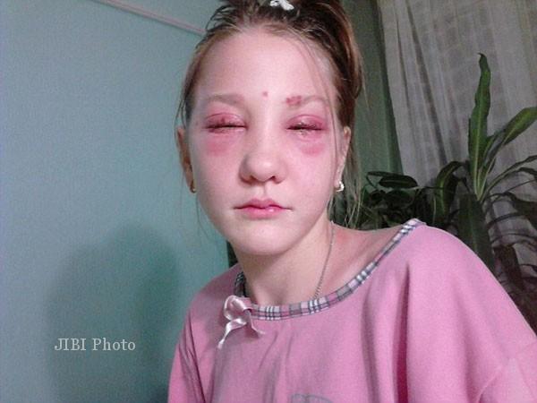Penyanyi cilik Rusia, Masha Kuznetsova buta sebelah setelah menjalani pewarnaan bulu mata dan alis (Dailymail)