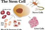 Ilustasi sel punca atau stem cell (Nuccimedicalclinic.com)
