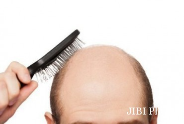 Ilustrasi kepala botak karena rambut rontok (Detik.com/Putro Agus Harnowo)