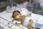 Bayi yang mengandung janin (Shanghaiist.com)