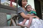 BOCAH KULIT BERSISIK : Tak Punya Biaya Berobat, Bayi Malang Itu Hanya Dirawat di Rumah