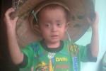 Alif, 3, bocah asal Palet, Kelurahan Ngegung, Manguharjo, Kota Madiun mengalami kelainan kulit. (Istimewa/facebook)