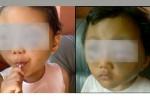 Foto kolase wajah Sy, 4, balitan asal Slogohimo, Wonogiri, yang diduga dianiaya ibu kandungnya sendiri. (Istimewa)