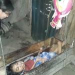 KISAH TRAGIS : Akibat Lumpuh, ABG 17 Tahun Hanya Bisa Tidur Di Ayunan Bayi