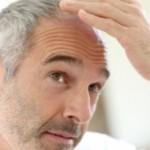 TAHUKAH ANDA? : Cabut Uban, Bulu Ketiak, hingga Rambut Kemaluan Ternyata Berbahaya