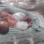 BAYI KEMBAR SIAM : 3 Hari di RS Kariadi, Kembar Siam Temanggung Meninggal