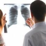 TIPS KESEHATAN : Tanda Tubuh Diserang Sel Kanker