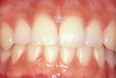 Ilustrasi gigi dan gusi (32tdental.com.my)