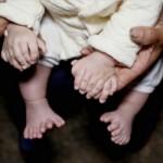 Bayi dengan jari berjumlah 31. (Istimewa/Straittimes)