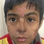 Bocah yang hidungnya diselamatkan dengan cara ditanam di dahi. (Istimewa)
