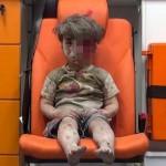 Foto menyayat hati, bocah Suriah korban perang saudara. (JIBI/Istimewa)