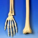 TIPS KESEHATAN : 7 Cara Cepat Sembuhkan Patah Tulang