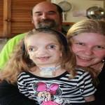 KISAH INSPIRATIF : Anak Alami Penyakit Langka di Wajah, Ini Curhat Sang Orang Tua
