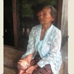 KISAH TRAGIS : Sukiyem Asal Sukoharjo 5 Tahun Hidup dengan Tumor di Mata dan Tangan
