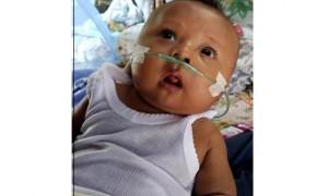 Noval, bayi berusia 2 bulan asal Sragen yang menderita kebocoran jantung. (Tri Rahayu/JIBI/Solopos)