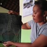 TKW Ponorogo Ini Pulang dengan Tulang Punggung Retak