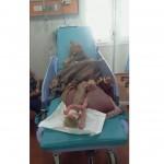 SATWA LIAR BOYOLALI : Nenek-Nenek Sebatang Kara Korban Serangan Monyet Batal Diamputasi