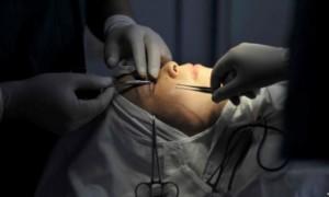 Ilustras prosedur bedah plastik. (JIBI/Reuters)