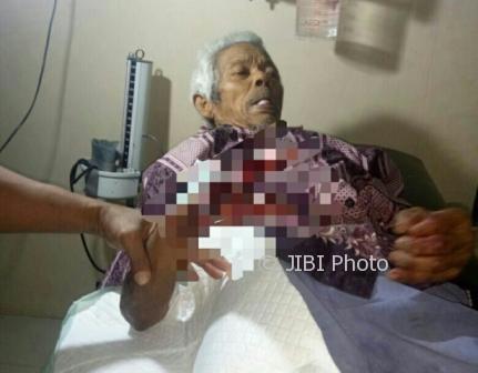 Mbah Parmo, 82, terluka tangannya akibat serangan monyet liar di Desa Bangkok, Karanggede, Selasa (1/8/2017) lalu. (Istimewa)