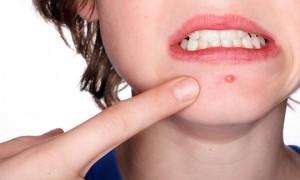 Foto ilustrasi: Kehadiran jerawat bisa dicegah dengan menghindari makanan pemicu jerawat. (acnetreatment.us)