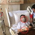 8 Kejanggalan di Foto Sakit Setya Novanto Versi Netizen