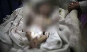 Bayi Sahar Dofdaa yang mati mengenaskan karena kelaparan (Theguardian.com)