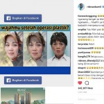 Kocak, Alasan Ridwan Kamil Larang Istri Operasi Plastik