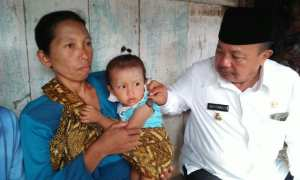 Bupati Madiun Muhtarom memegang tumor hemangioma di lengan bocah perempuan bernama Apriliana Natasya Putri, Rabu (22/11/2017) sore. (Abdul Jalil/JIBI/Madiunpos.com)