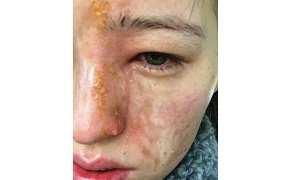 Wajah Emily Smith setelah terkena cairan pengharum ruangan (Thesun.co.uk)