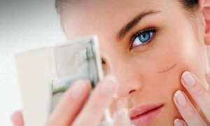 Ilustrasi bekas luka di wajah (Pop Sugar)