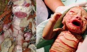 Bayi dengan Ichthyosis harlequin (Instagram)