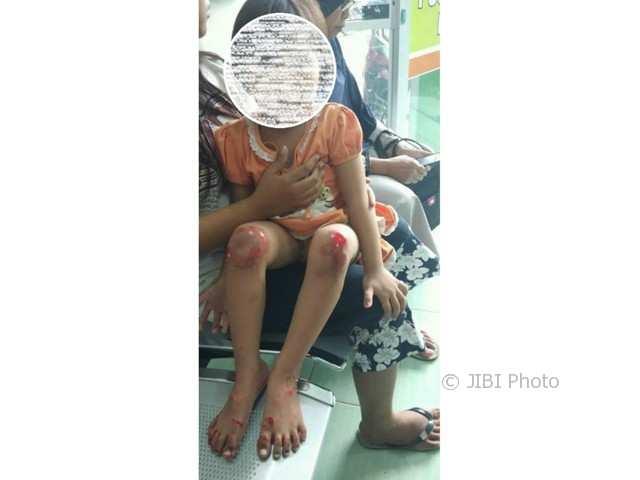 Kondisi bocah yang diseret ibunya menggunakan sepeda motor di Klaten (Facebook)