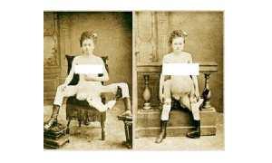 Blance Dumas, Perempuan dengan 3 kaki, 4 payudara, dan 2 vagina (thehumanmarvels.com)