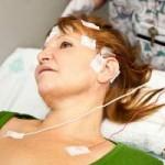 INFO HIDUP SEHAT : Awas! Penderita Stroke Bergeser Usia 30 Tahun