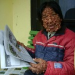 Dinkes Malang datangi Wisnu 'manusia gelembung'