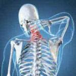 Hari Osteoporosis Sedunia, Ini 6 Cara Hindari Tulang Keropos