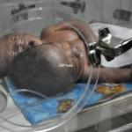 BAYI BERKEPALA DUA : RSUP Dr Sardjito Terima Bayi Berkepala Dua