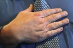 HASIL PENELITIAN : Ini Cara Deteksi Penyakit Jantung dari Genggaman Tangan