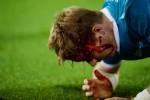 PEMAIN CEDERA : Lewandowski Bakal Pakai Topeng Saat Hadapi Barcelona