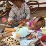 KISAH UNIK : Tempurung Kepala Bocah Ini Terbelah Sejak Lahir