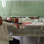 KESEHATAN WONOGIRI : Duh! Tahi Lalat di Wajah Perempuan Baturetno Ternyata Kanker Kulit Ganas